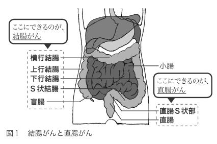 「結腸がん」と「直腸がん」に大別