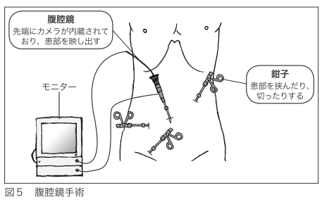 大腸がんの腹腔鏡手術