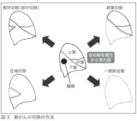 肺がんの切除方法