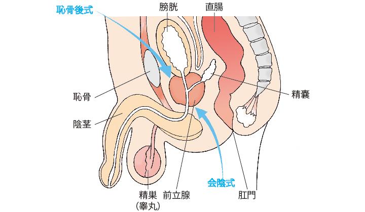 開腹手術(恥骨後式・会陰式)