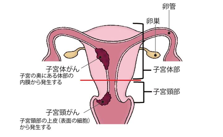 (図)「子宮頸がんと子宮体がんの発生する場所」