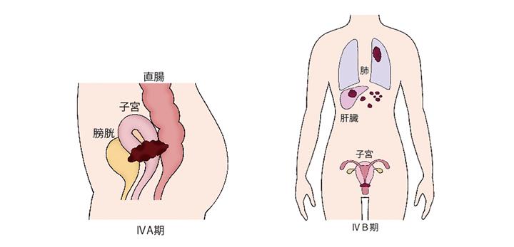 図)「子宮頸がんの進行期分類」