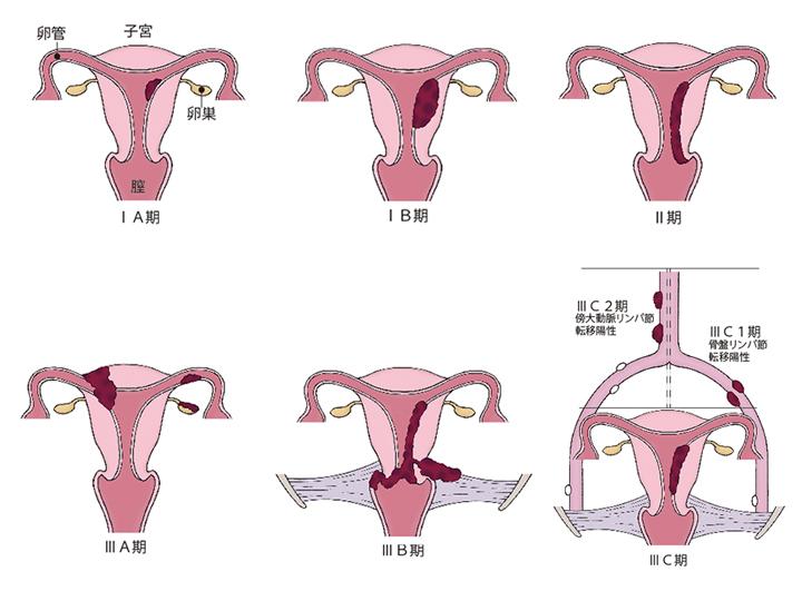図)「子宮体がんの進行期分類」