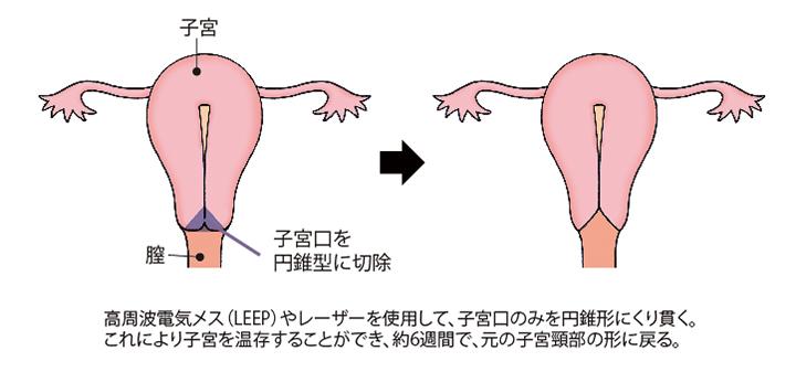 (図)「子宮頸部円錐切除術」