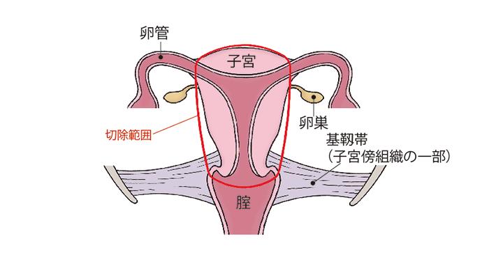 (図)「準広汎子宮全摘術」