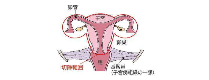 (図)「単純子宮全摘術+両側付属器切除術」