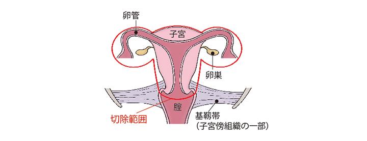 (図)「準広汎子宮全摘術+両側付属器切除術」