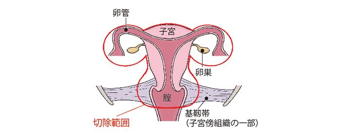 (図)「広汎子宮全摘術+両側付属器切除術」