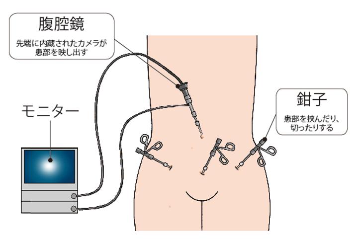 (図)「腹腔鏡下手術」