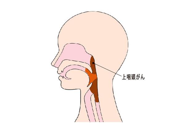(図)上咽頭がんの位置