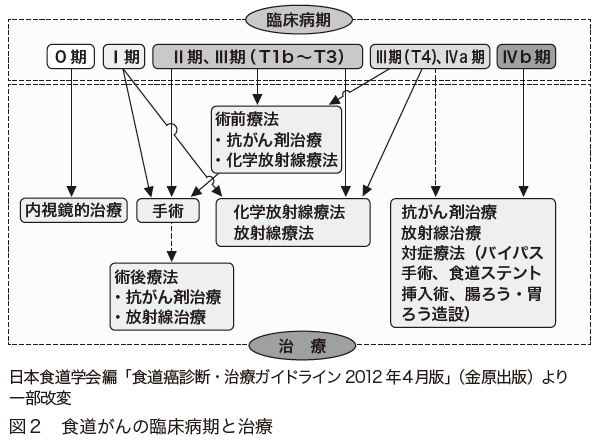図2 食道がんの臨床病期と治療 日本食道学会編「食道癌診断・治療ガイドライン2012年4月版」(金原出版)より」一部改変