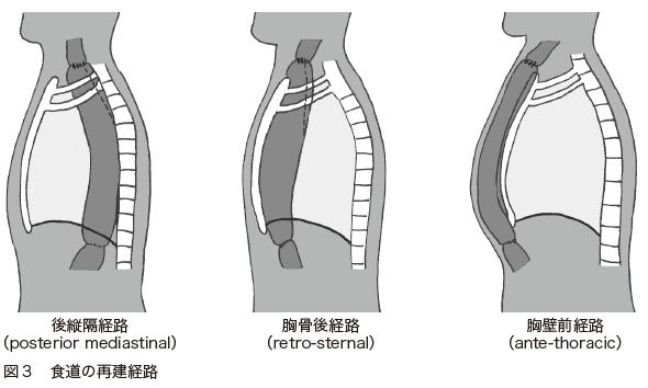 図3 食道の再建経路