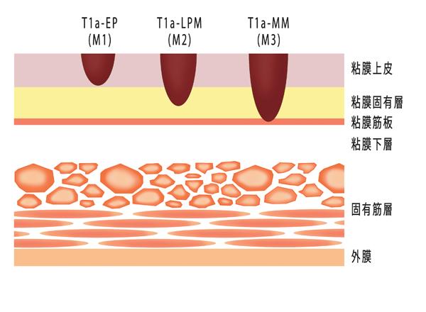 【食道がん】「O期T1aの進達度分類」