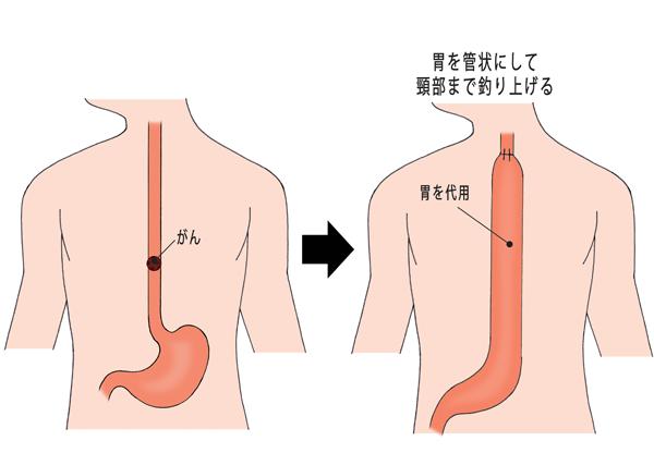 【食道がん】食道の再建:胃を管状にして頸部まで釣り上げる