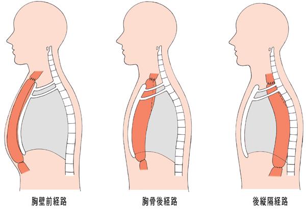 【食道がん】「食道の再建経路」:胸壁前経路、胸骨後経路、胸縦隔経路