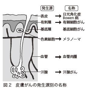 図2 皮膚がんの発生源別の名称