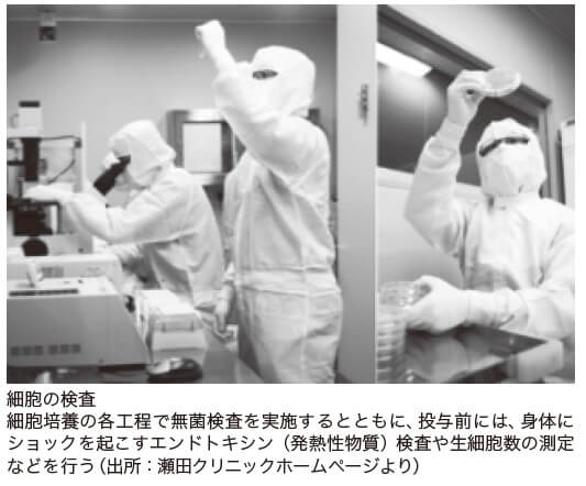 細胞の検査: 細胞培養の各工程で無菌検査を実施するとともに、投与前には、身体にショックを起こすエンドトキシン(発熱性物質)検査や生細胞数の測定などを行う(出所:瀬田クリニックホームページより)