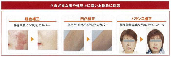 図3 メイクの事例。肌色補正、凹凸補正、バランス補正などができる 肌色補正 あざや濃いシミなどのカバー 凹凸補正 傷あと・やけどあとなどのカバー バランス補正 顔面神経麻痺などのバランスメーク